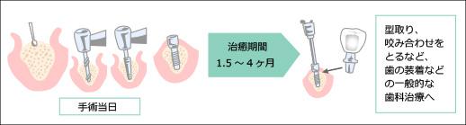 インプラント治療1回法
