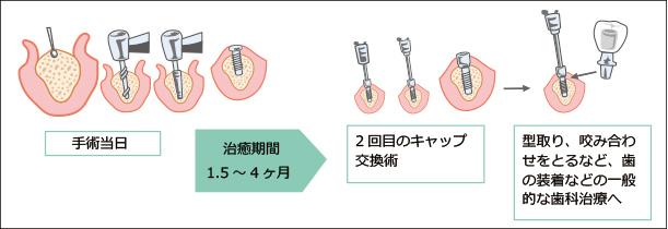 インプラント治療2回法