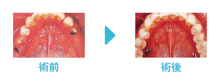 インプラント術前と術後の比較症例