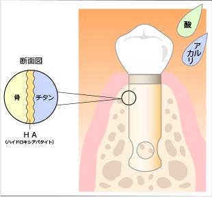 インプラントの断面図