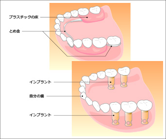 インプラントと入れ歯の違い