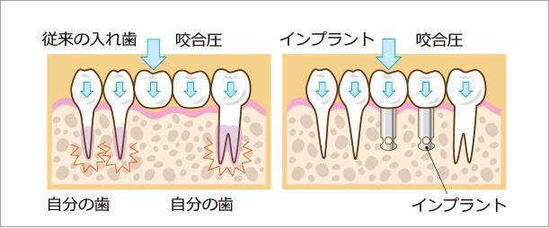 咬合圧による歯への負担