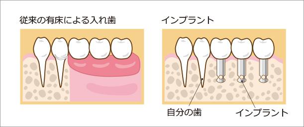 従来の有床による入れ歯とインプラント