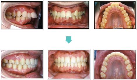 出っ歯治療前後