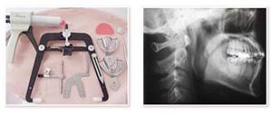 検査器具とレントゲン写真