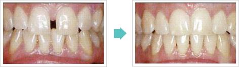 すきっ歯治療前後
