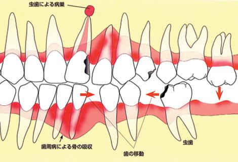 相手方・隣の歯