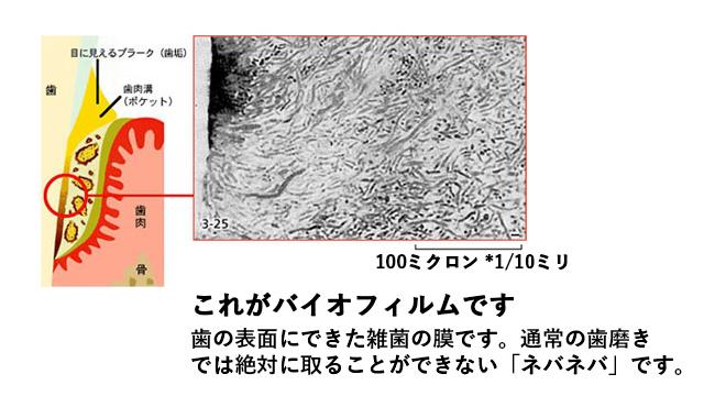 これがバイオフィルムです。歯の表面にできた雑菌の膜です。通常の歯磨きでは絶対に取ることができない「ネバネバ」です。