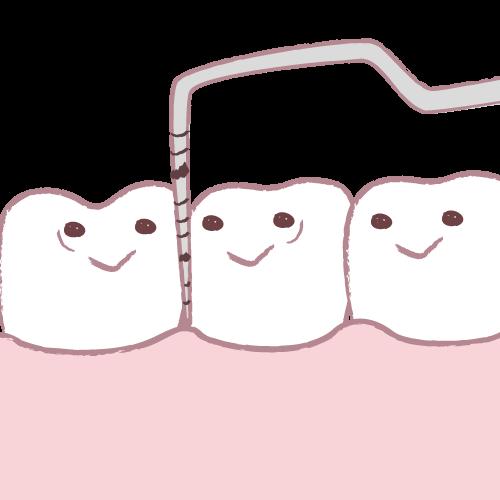 歯周病治療法